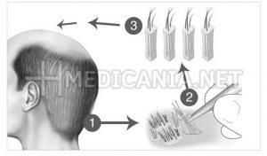 زراعة الشعر بأدق التفاصيل