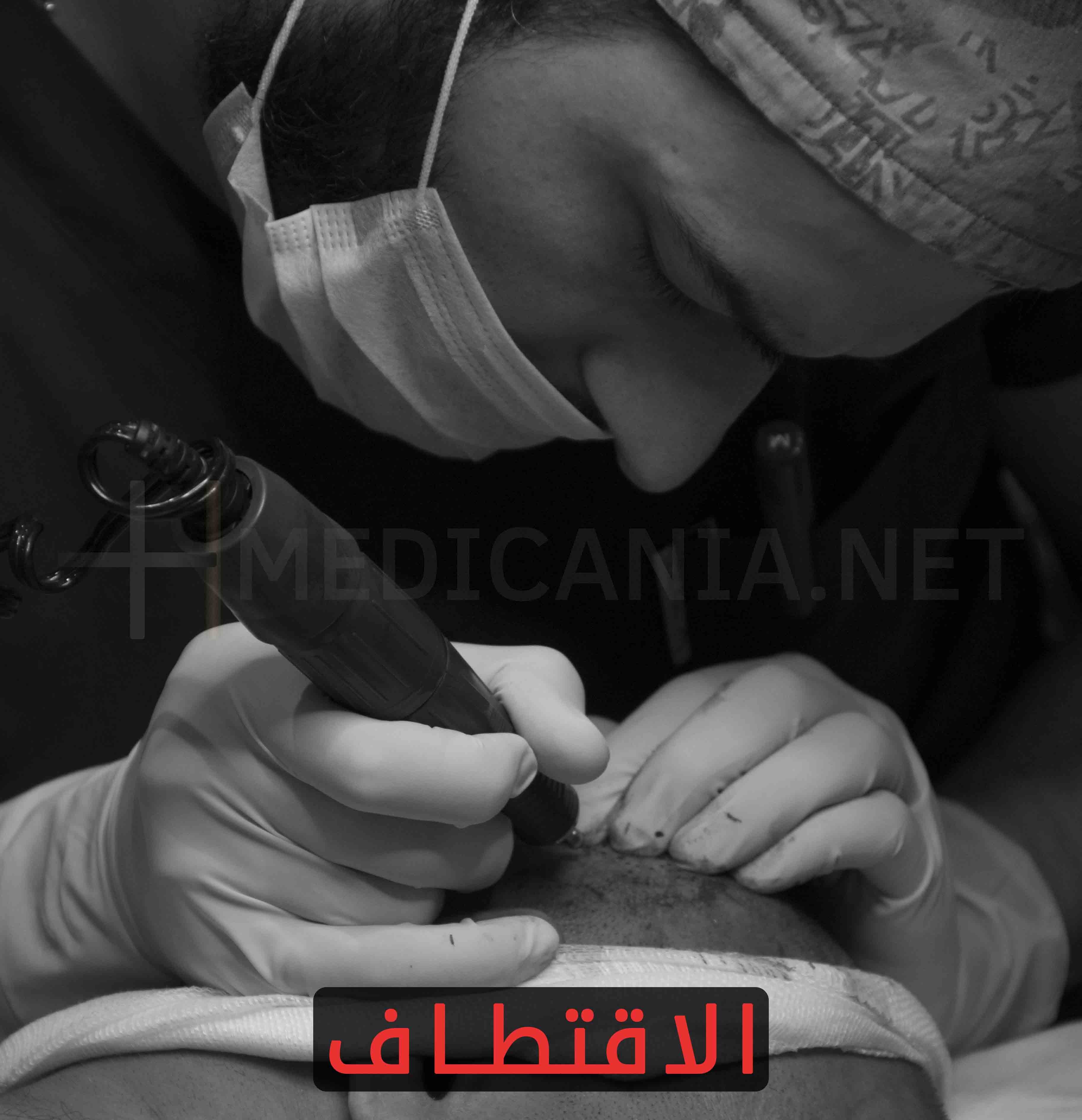تقنية الاقتطاف (Follicle Unit Extraction) أو (FUE)