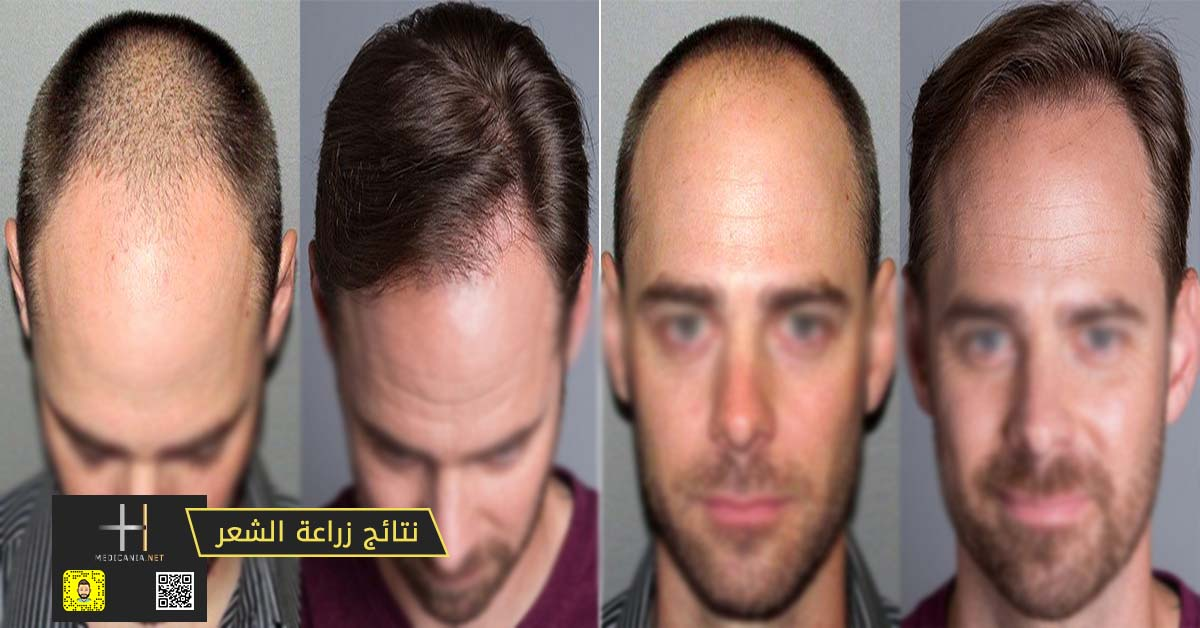 كيف تحصل على أفضل نتائج زراعة الشعر ما يجب أن تفعله حتى تختار أفضل مركز لزراعة الشعر