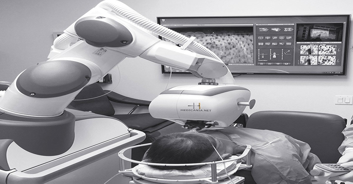 تقنية روبوت آرتاس (ARATAS)