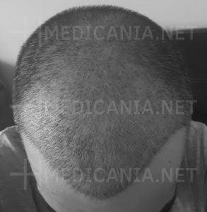 نمو الشعر بعد الزراعة