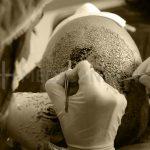 زراعة الشعر للرجال في تركيا اسطنبول